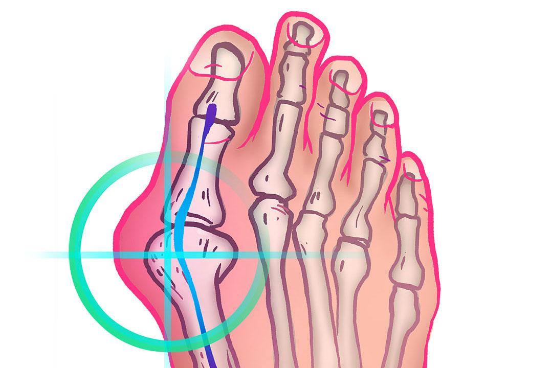 chirurgie-main-pied-Nice-Becquet-orteil-oignon-HALLUX-VALGUS-verti-720
