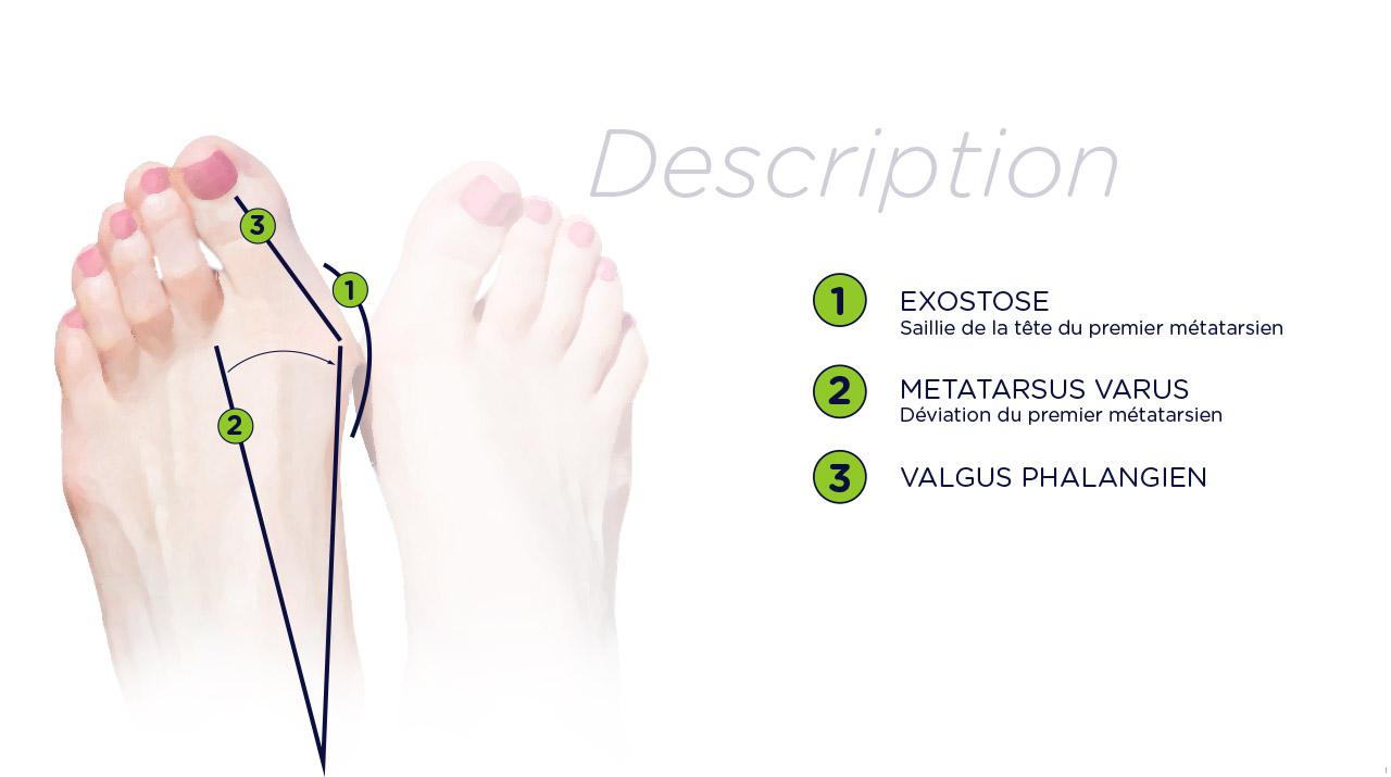 chirurgie-pied-nice-oignon-hallux-valgus-definition-EPU-002